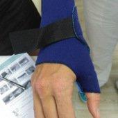 Artóza palce