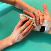rehabilitace ruky Praha 3