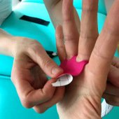 rehabilitace fyzioterapie ruky Praha